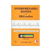 Interpretarea rapida a EKG-urilor