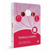 Tromboza si embolia (Editie de buzunar)