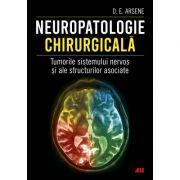 Neuropatologie chirurgicală. Tumorile sistemului nervos și ale structurilor asociate - Dorel Eugen Arsene